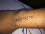 Stitches on wrist