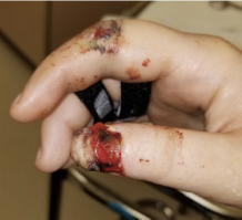 Lacerations on swollen, bleeding hand