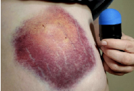Massive bruise on leg