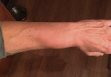 Severely swollen wrist
