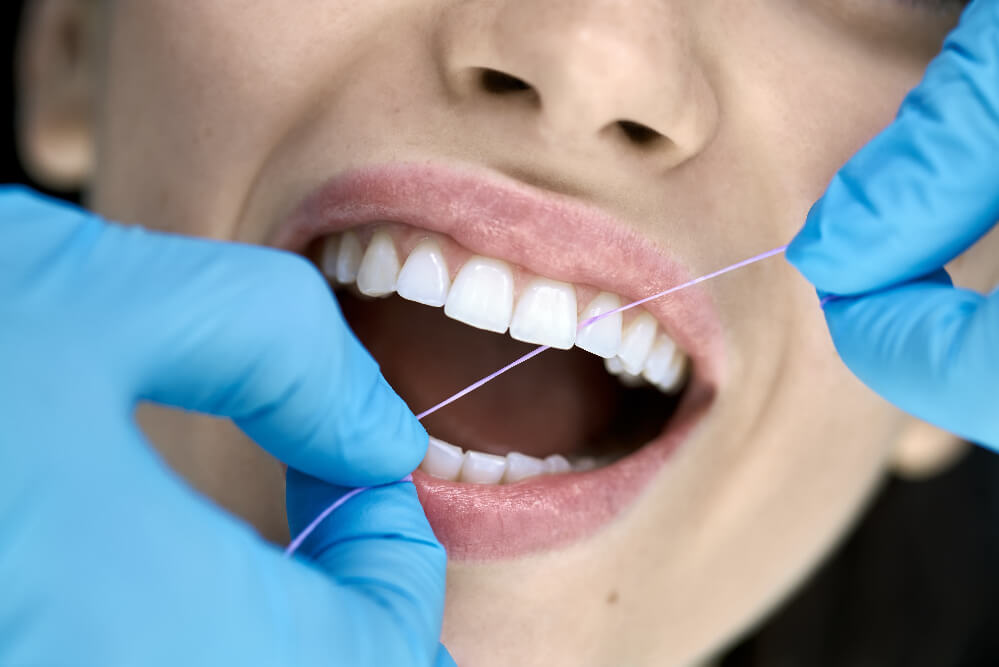 Dental cleaning in Tigard