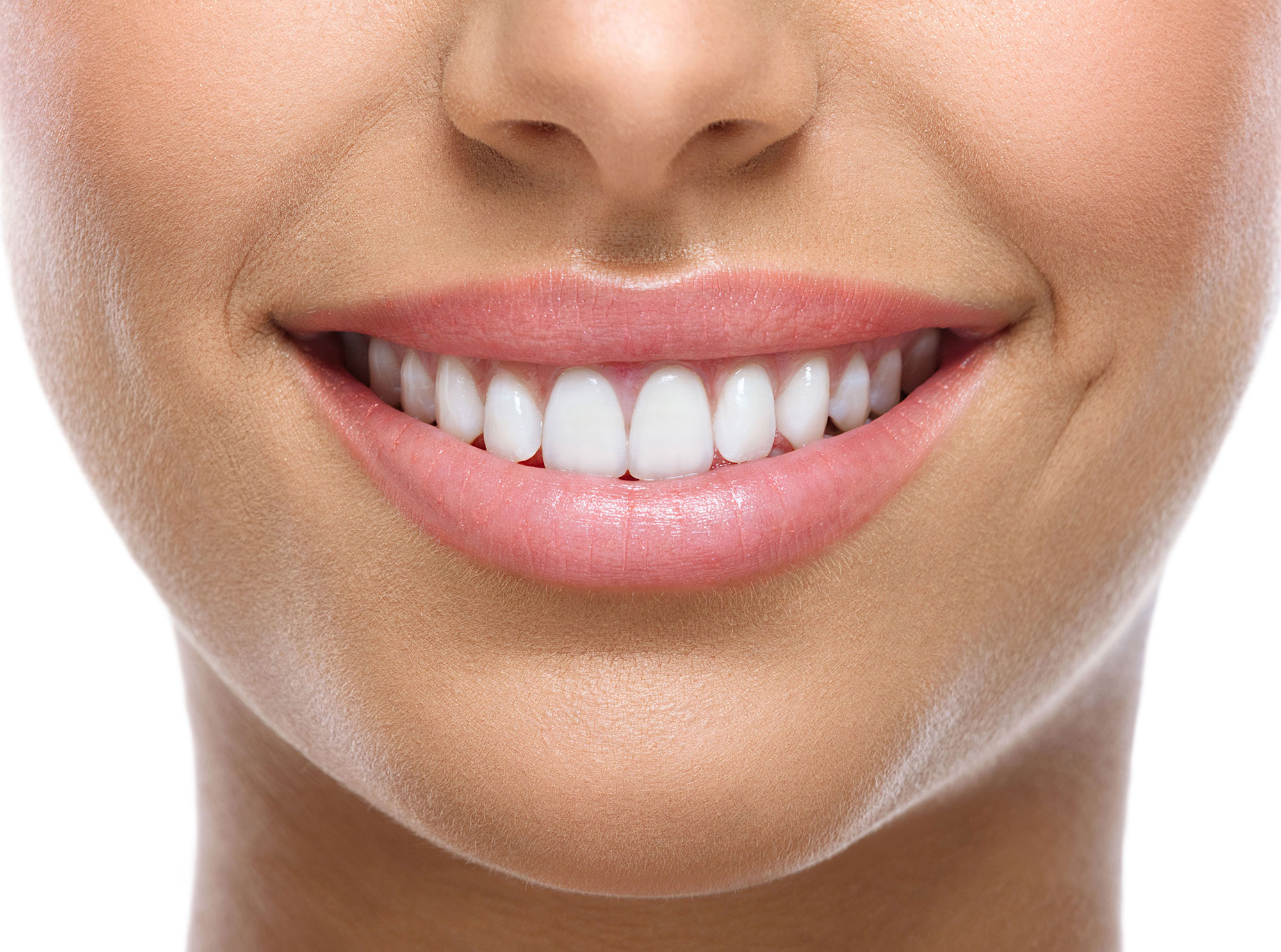 Veneers – Hollywood Smile image