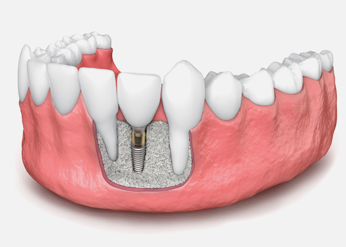 Bone Grafting image