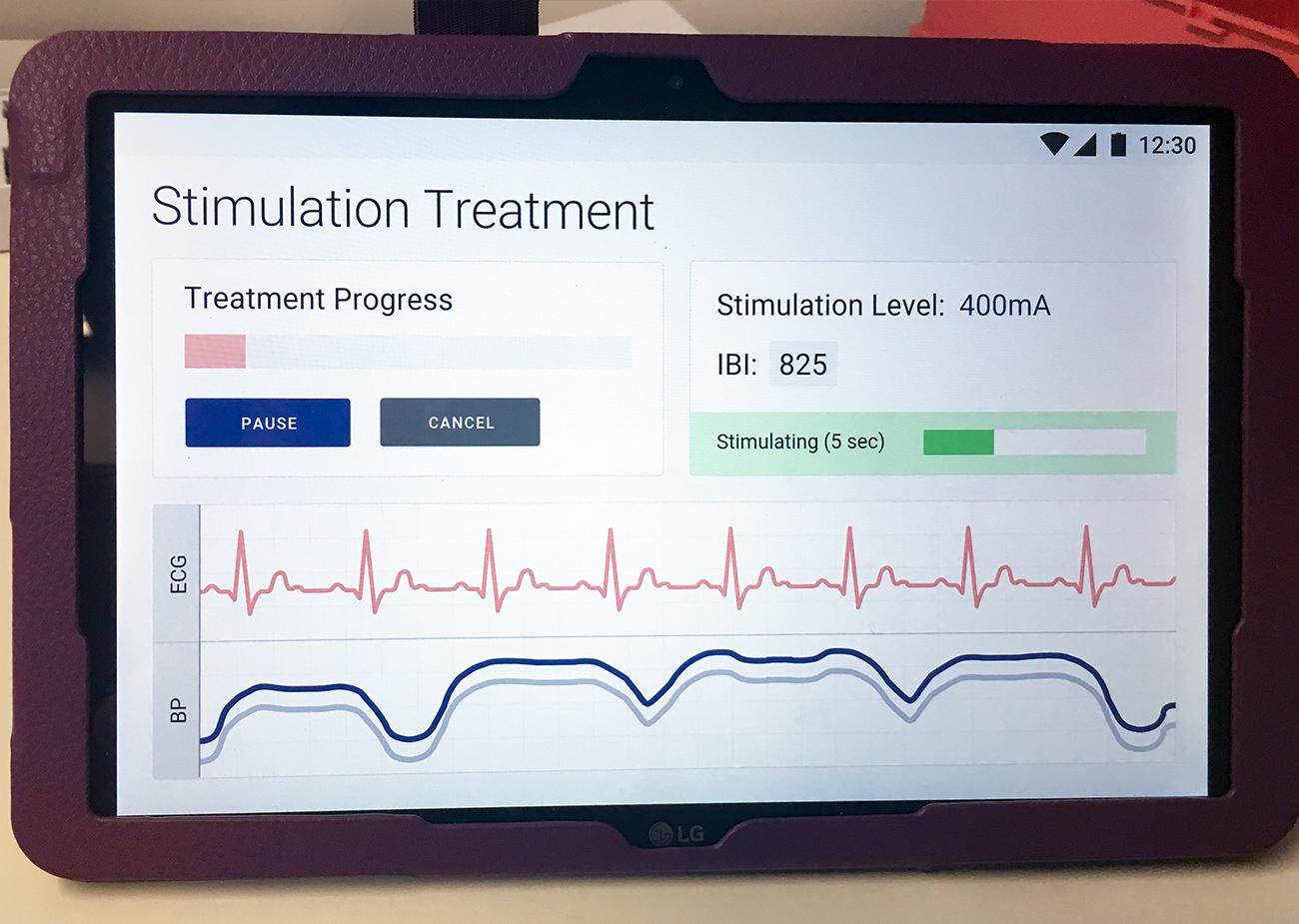 screen shown when treatment is running