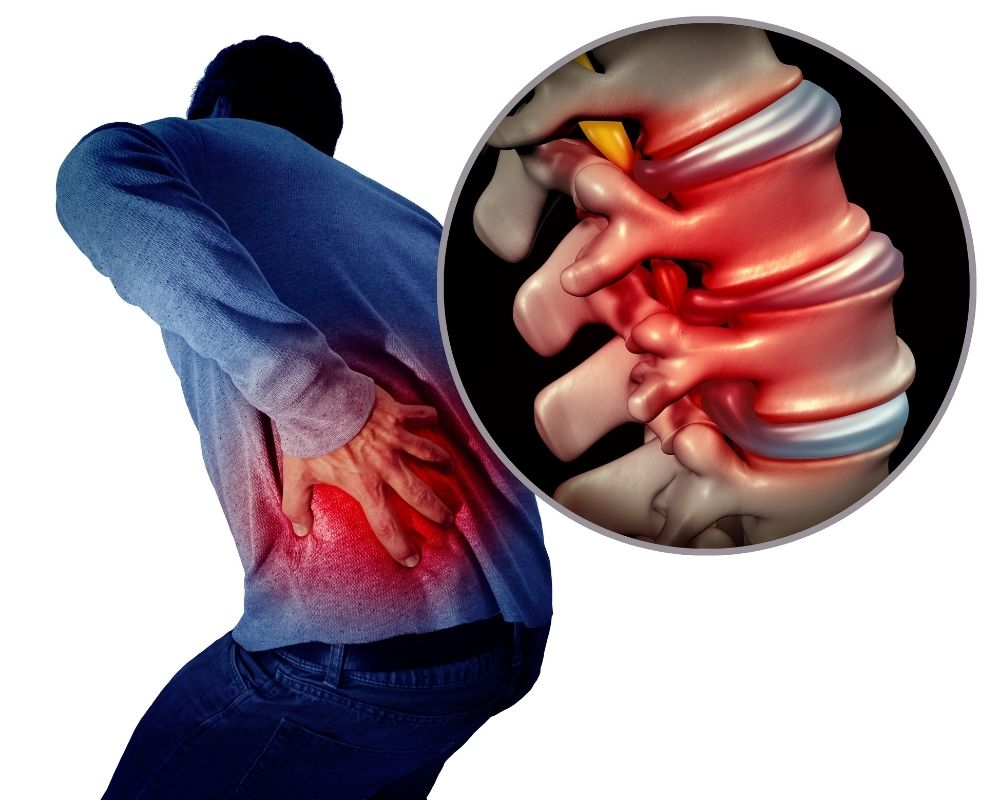 Lumbar spine in pain