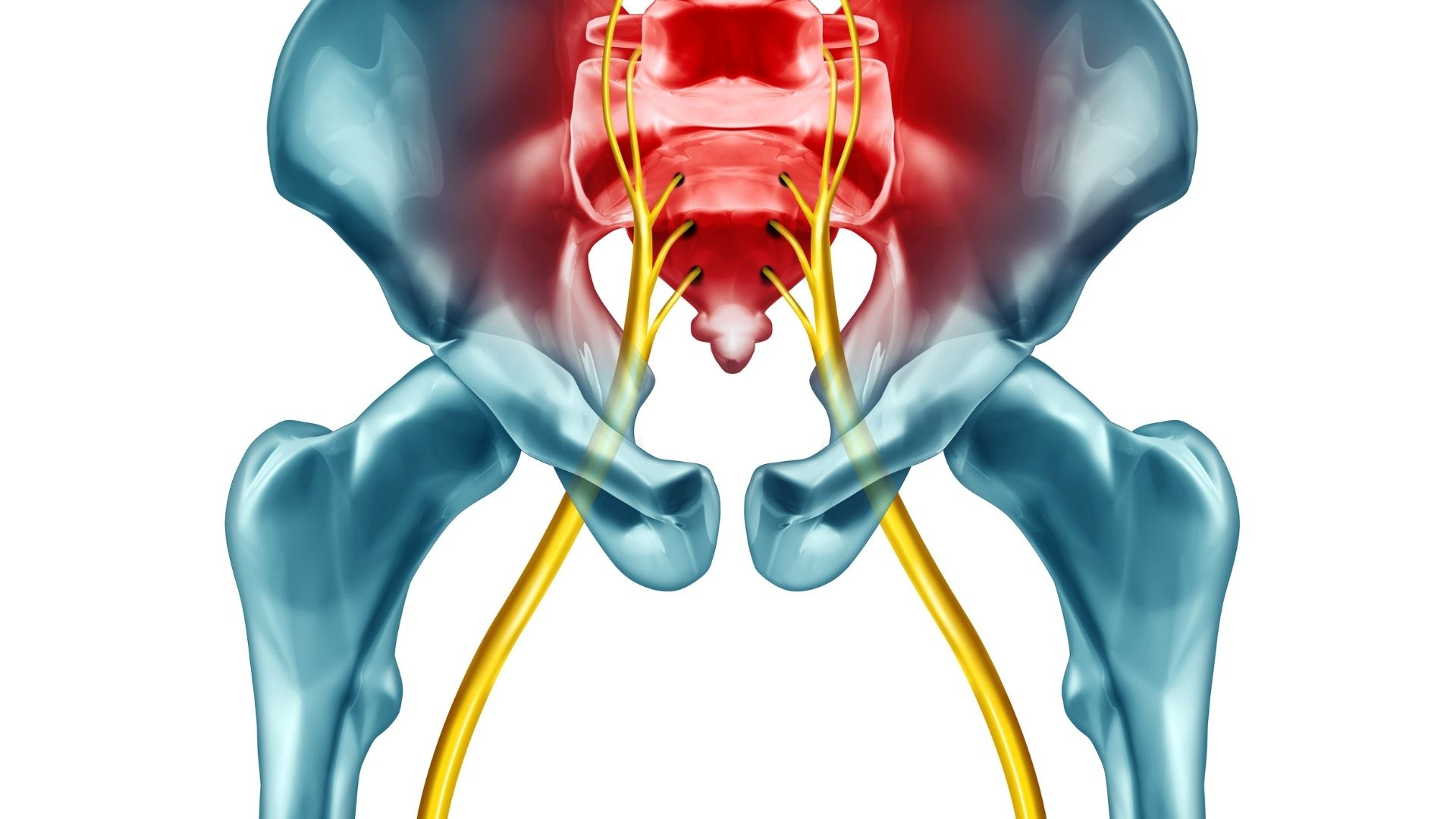 Sciatic Pain: How to Find Relief