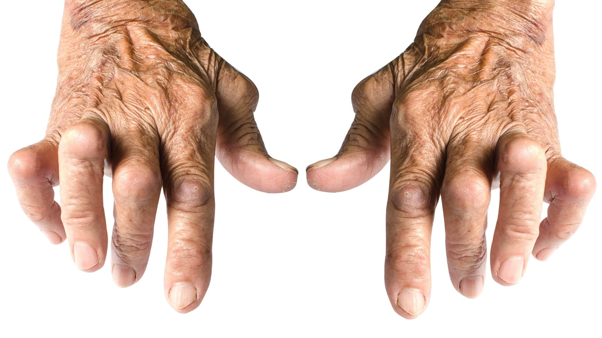 Osteoarthritis: the most common form of arthritis