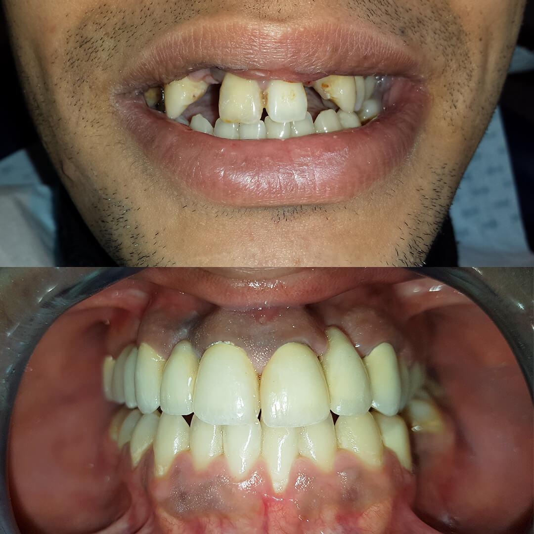 Photo de résultat d'implant dentaire