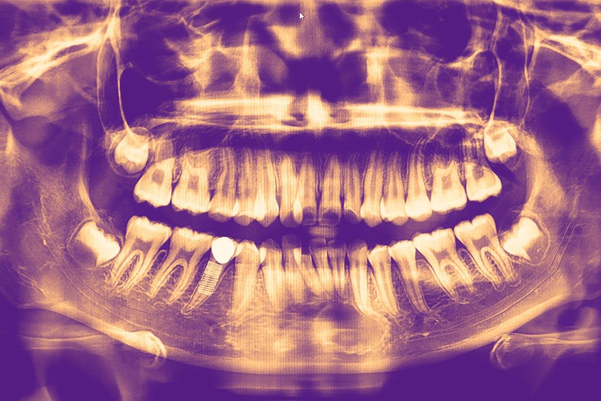 Radiographie d'une mâchoire avec implant dentaire