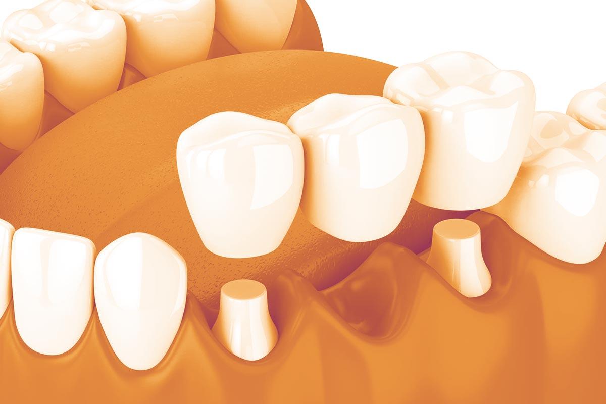 Image 3D de bridge dentaire