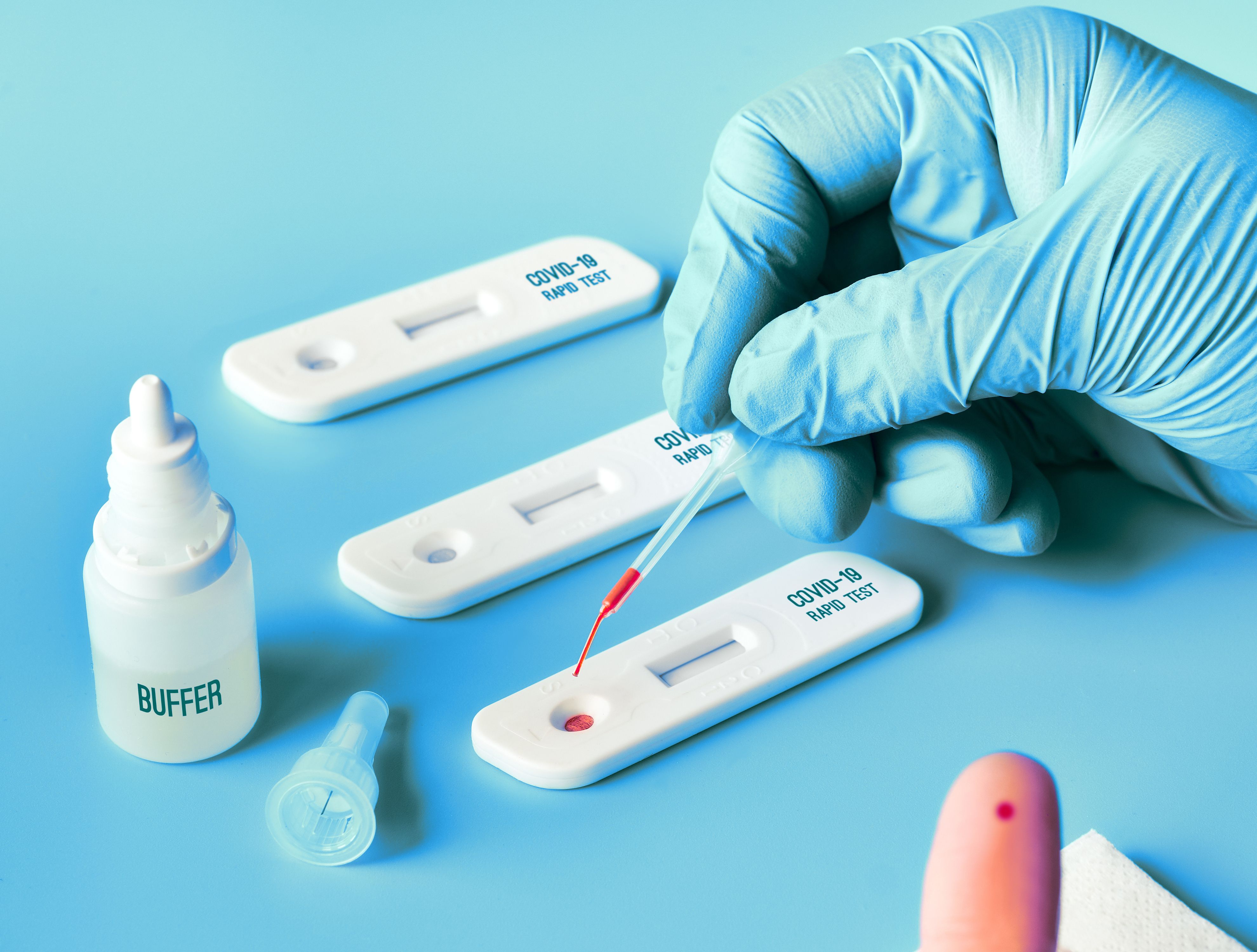 Bild COVID-19 Antikörpertest. Blutest zum Nachweis einer durchlebten SARS-CoV-2 Infektion oder Impfung.