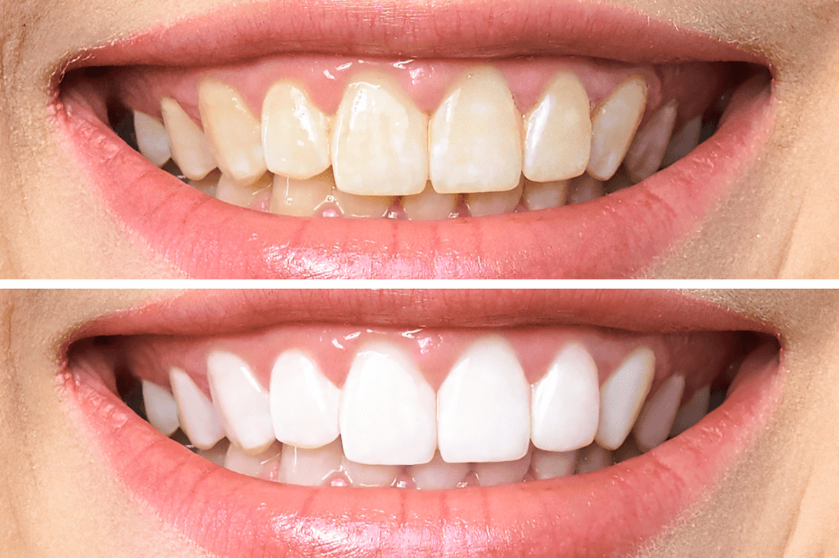 teeth whitening example of shade improvement
