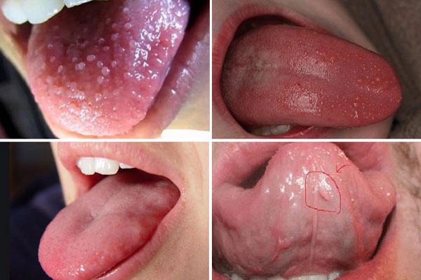 Những dấu hiệu sùi mào gà ở lưỡi giai đoạn đầu