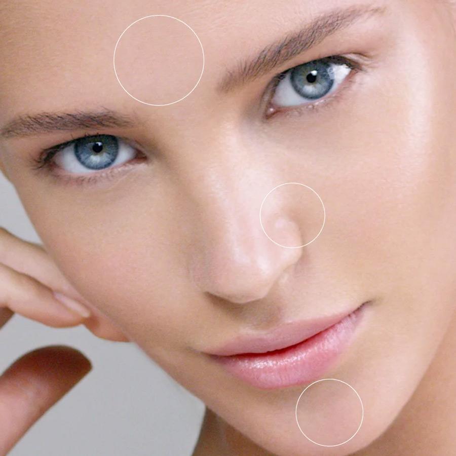 Was tun bei unreiner Haut? Wir haben die Lösung für Sie!