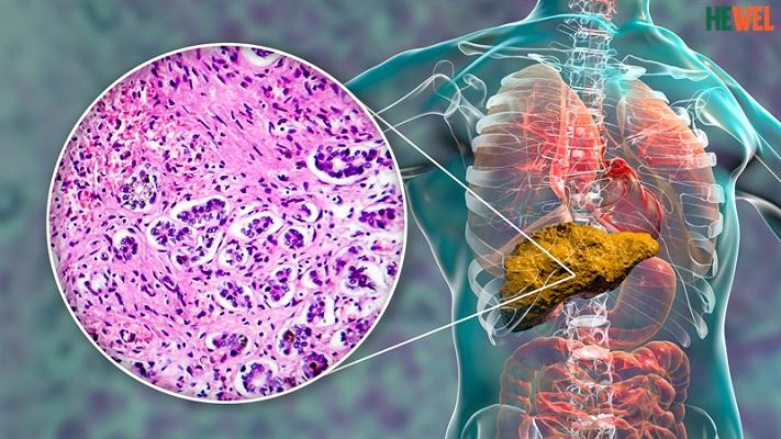 Hình ảnh Xơ gan do bia rượu đã vượt mặt xơ gan do virus tại Việt Nam