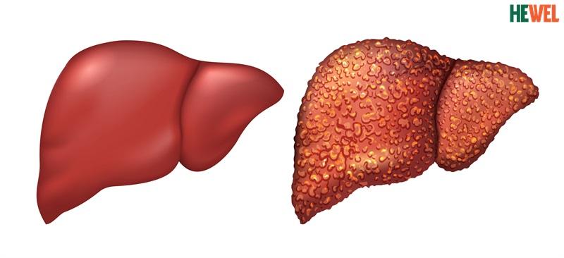 Hình ảnh Chú ý đến 7 biến chứng nguy hiểm trong bệnh xơ gan