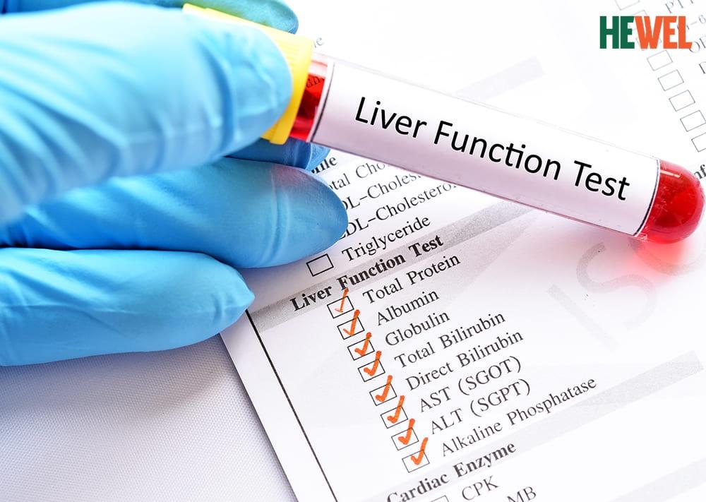 Hình ảnh Cách đọc các chỉ số trong xét nghiệm chức năng gan