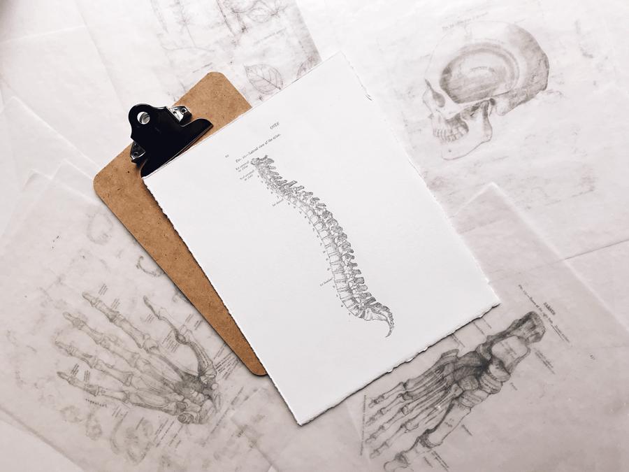 Des radiographies sur une planche à pince et sur une table.