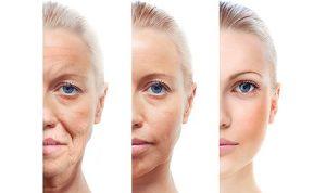 Trẻ hóa làn da là gì