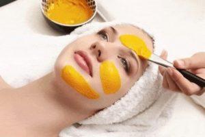 Mặt nạ trị mụn trắng da với sữa chua và nghệ