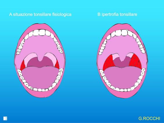 ipertrofia tonsillare che causa il russamento