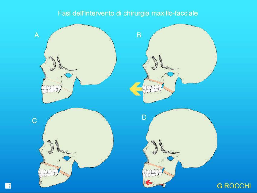 chirurgia maxillofacciale per smettere di russare
