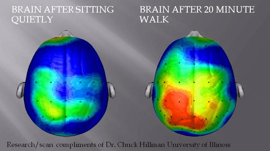 2013-11-11-brain-thumb