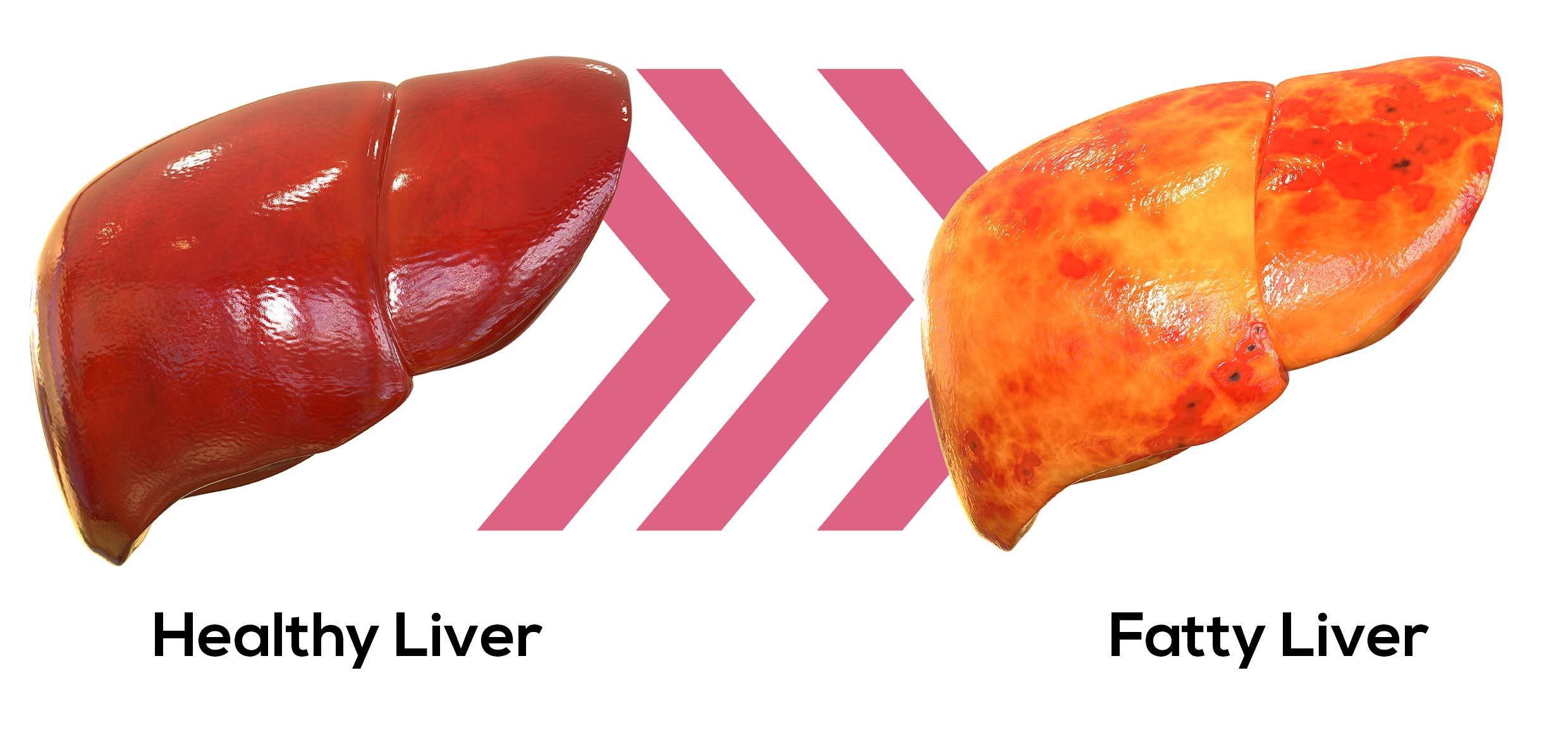 healty liver and fatty liver