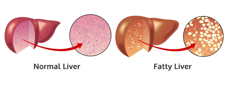 Fatty Liver, Liver Cirrhosis and Weight Loss Surgery