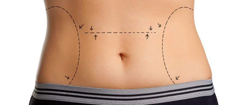 Weight Loss Surgery is not Esthetic or Cosmetic Surgery
