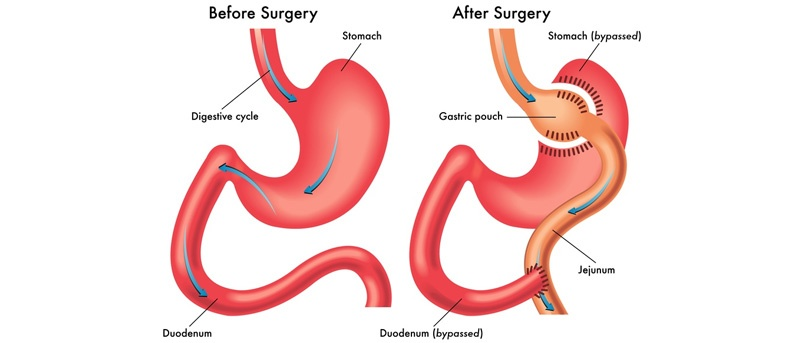 Gastric Bypass Surgery: How it works, Pros and Cons