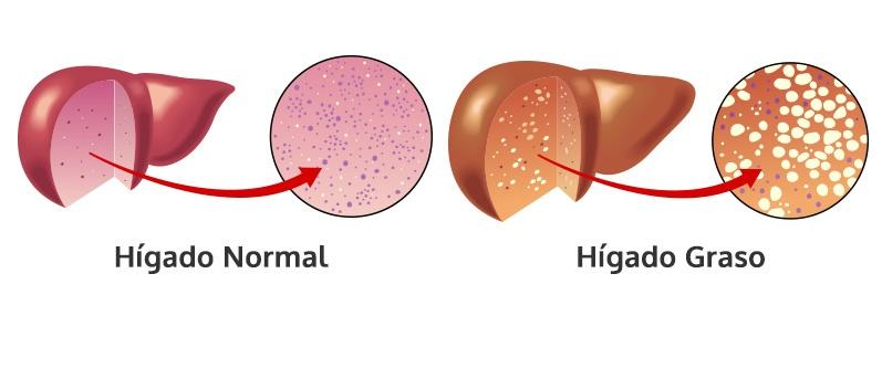 Hígado graso, Cirrosis Hepática y Cirugía de Obesidad