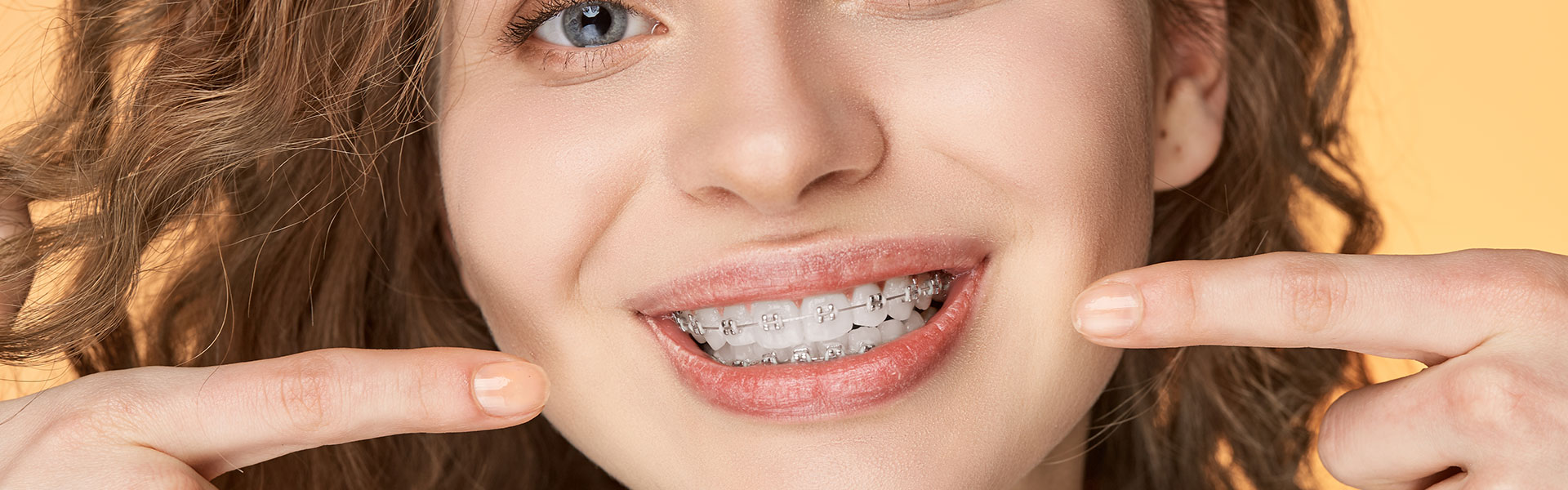 Young lady pointing to her braces