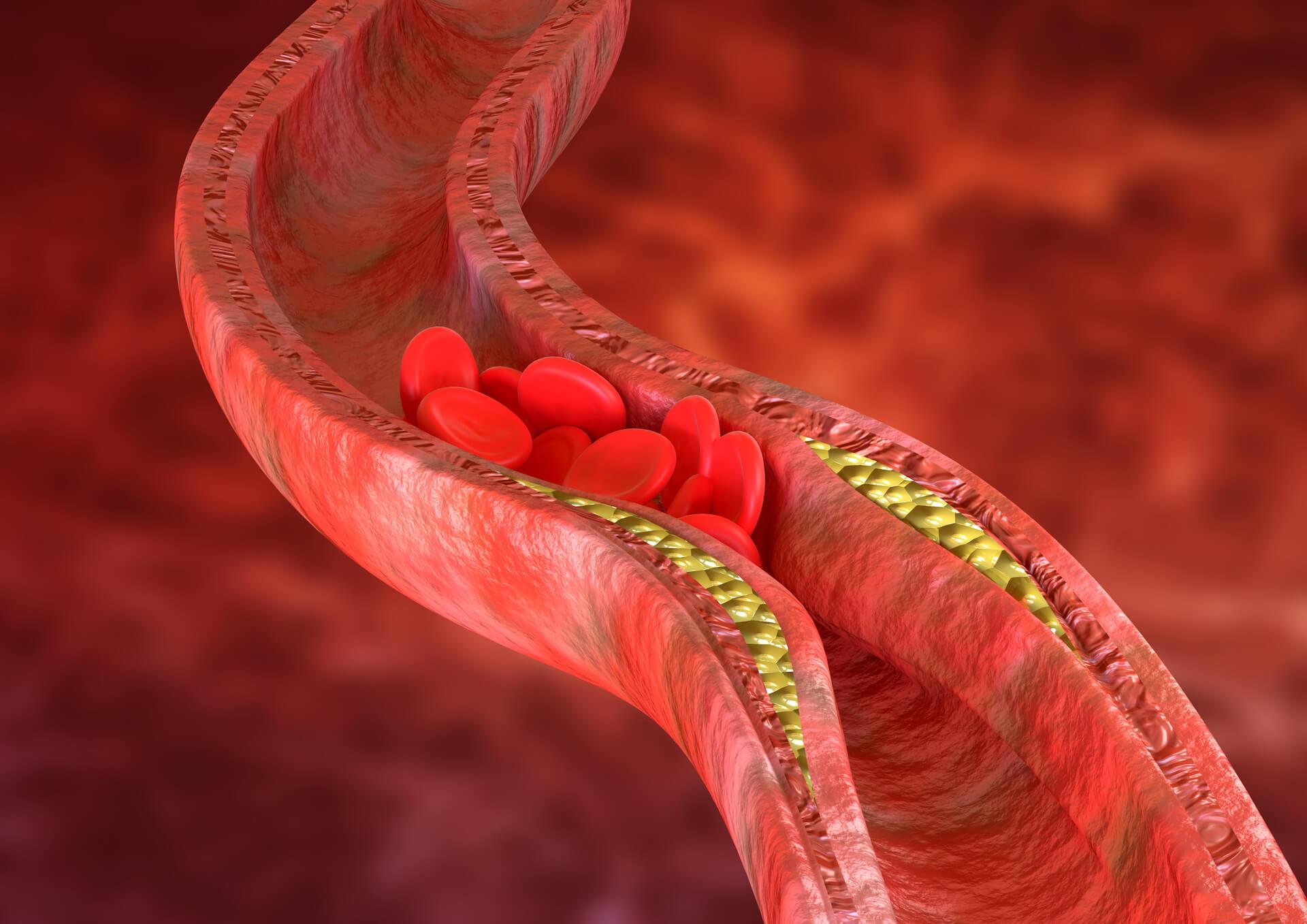 Povišene masnoće u krvi