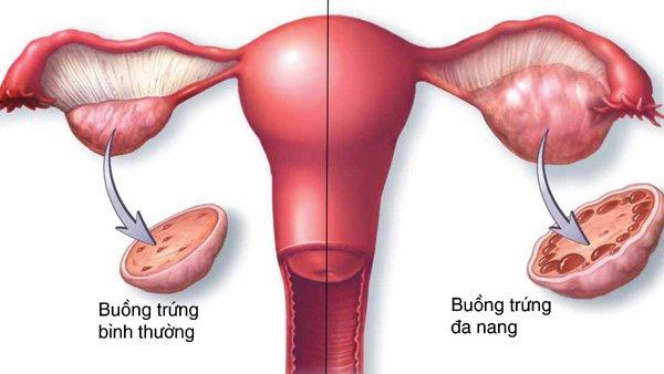 Những biểu hiện của đa nang buồng trứng chị em thường bỏ qua