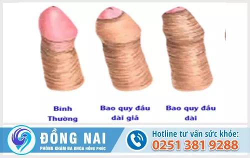 Địa chỉ phòng khám điều trị dài bao quy đầu ở Biên Hòa - Đồng Nai uy tín
