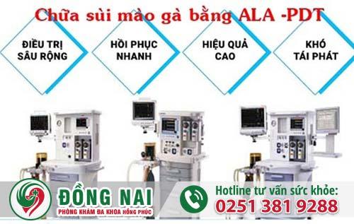 Phương pháp ALA-PDT điều trị sùi mào gà hiệu quả