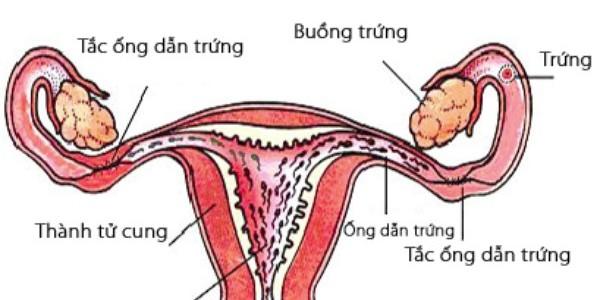Nguyên nhân dẫn đến tắc ống dẫn chứng chủ yếu do viêm nhiễm cơ quan sinh dục