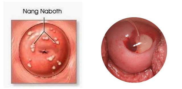 Nang naboth cổ tử cung là gì, dấu hiệu và độ nguy hiểm
