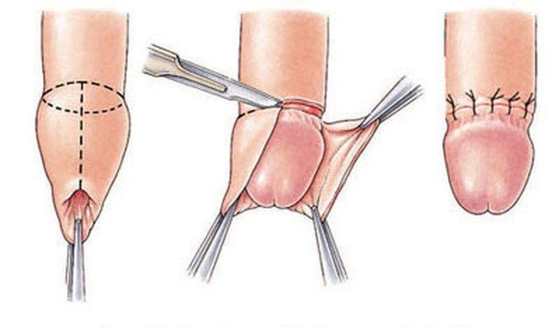 Quy trình cắt bao quy đầu cho người lớn?