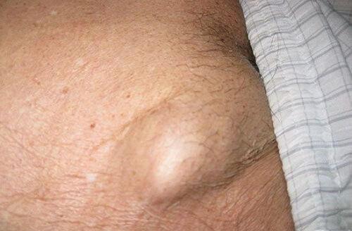 Nổi hạch ở bộ phận sinh dục nam