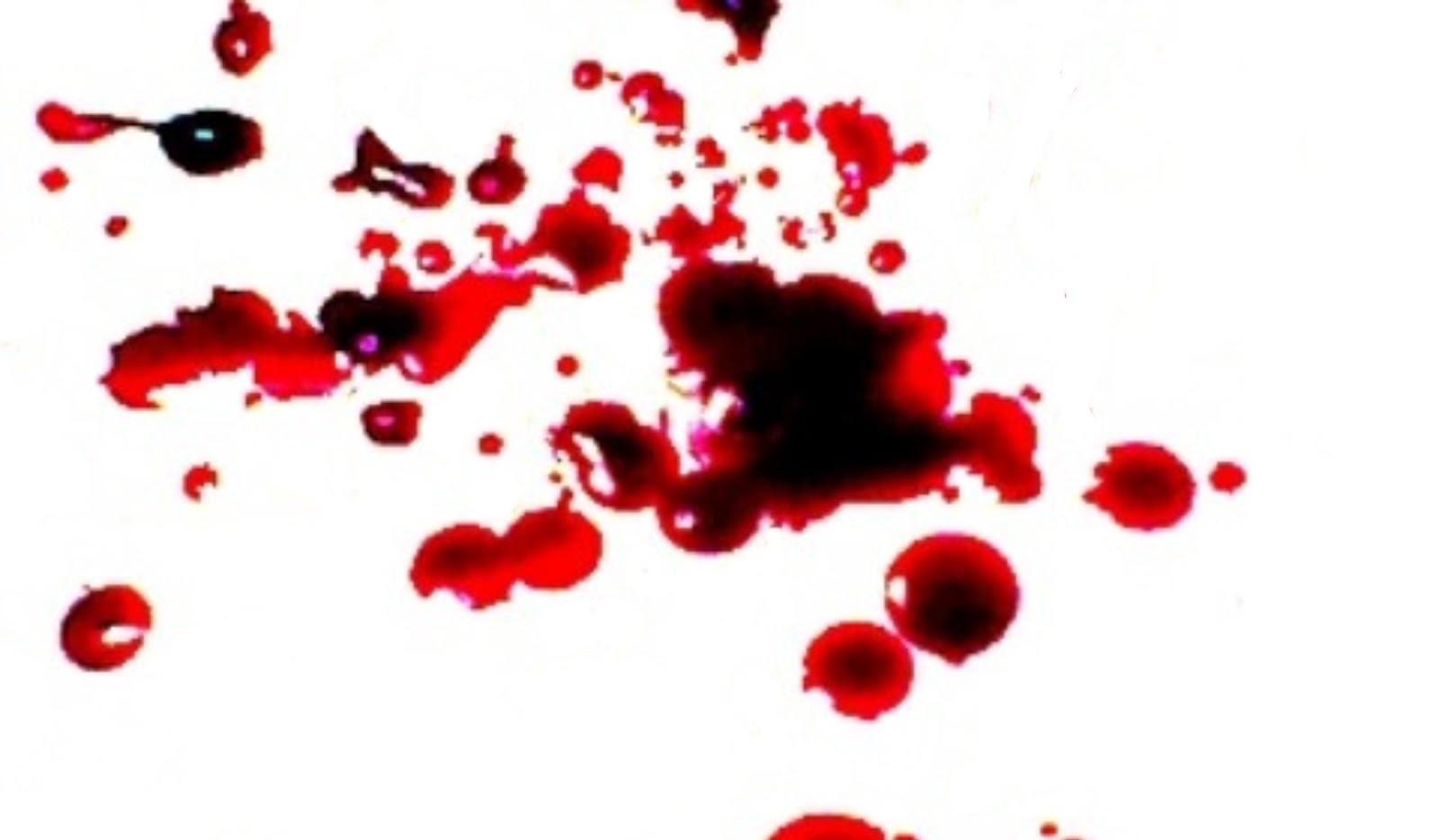 triệu chứng chảy máu sẽ kéo dài từ 3 đến 5 ngày