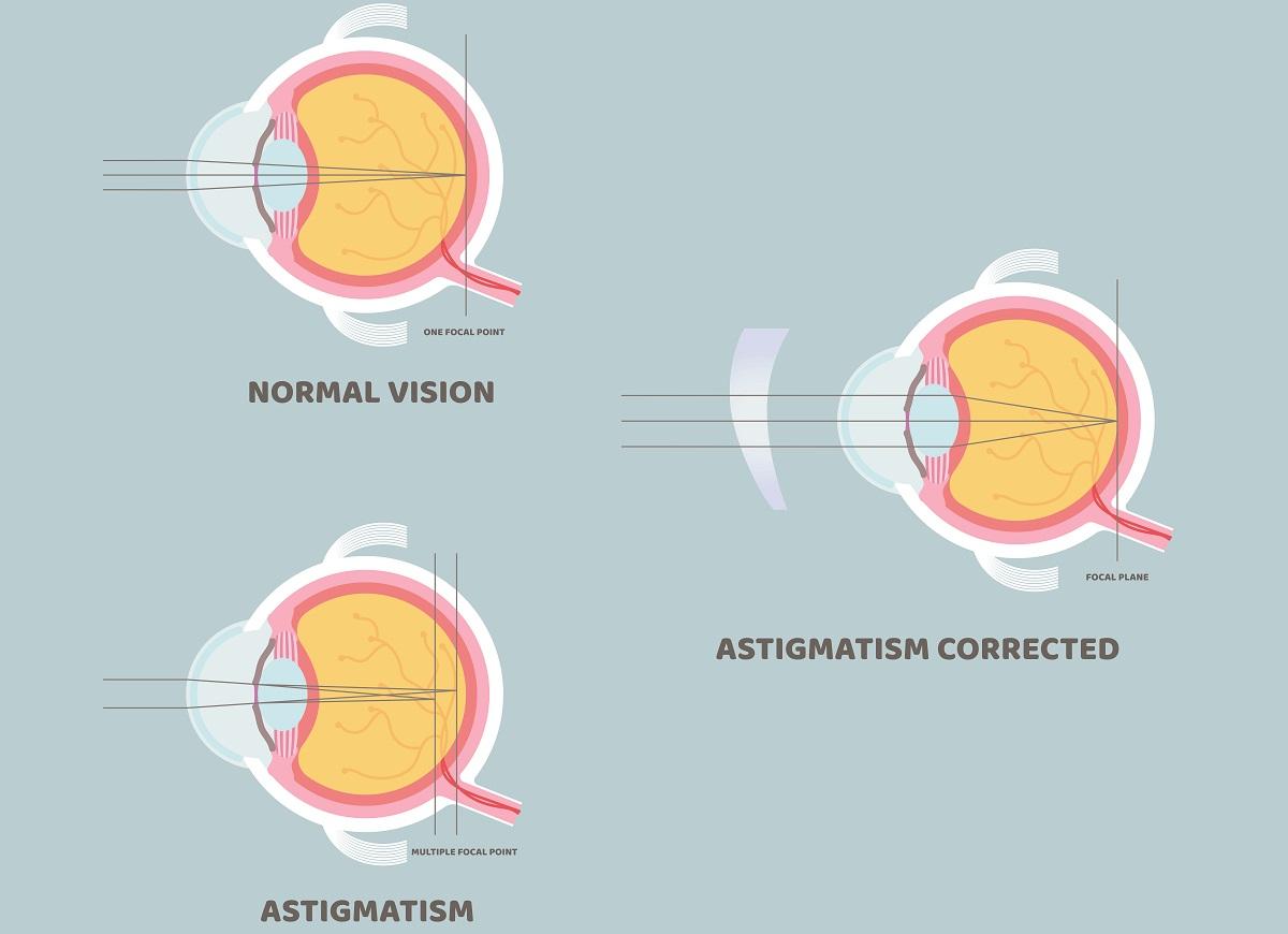 What Causes Astigmatism