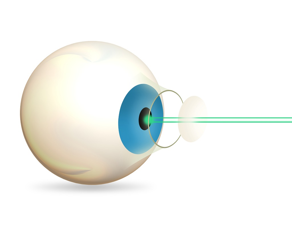 What Is Lasik