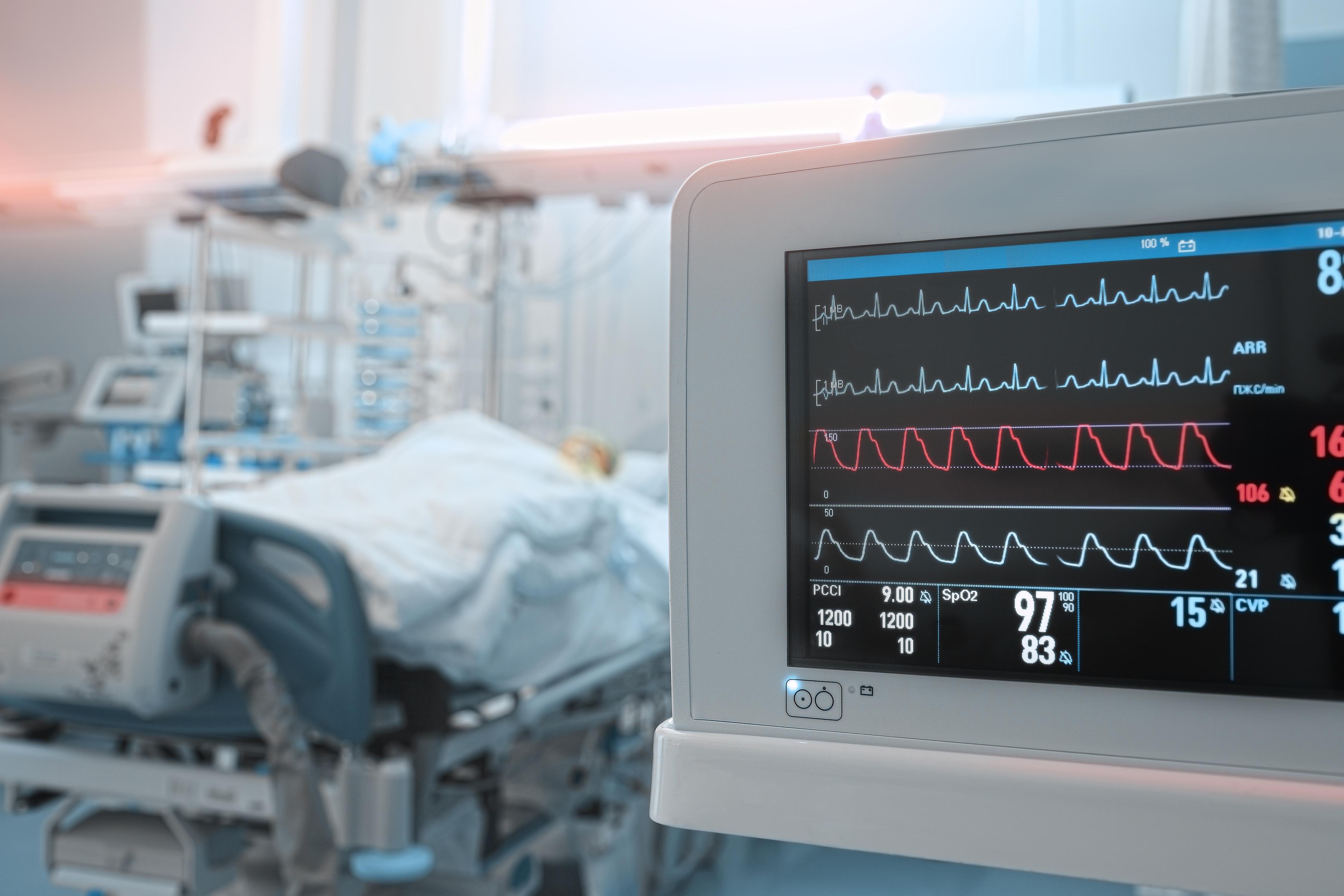ECG in hospital