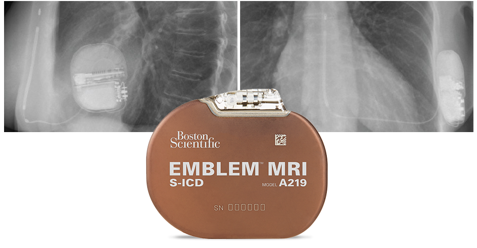 EMBLEM™ MRI S-ICD System   Implant Procedure - Boston Scientific