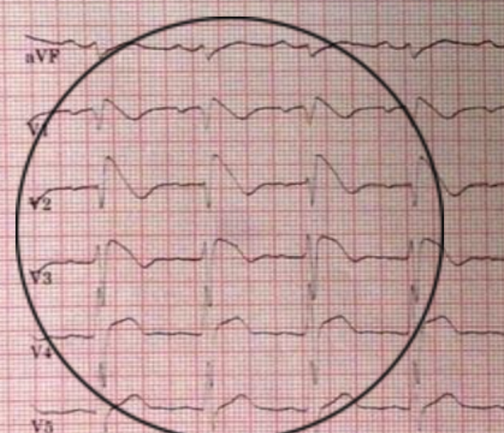 Brugada syndrome related cardiac arrest