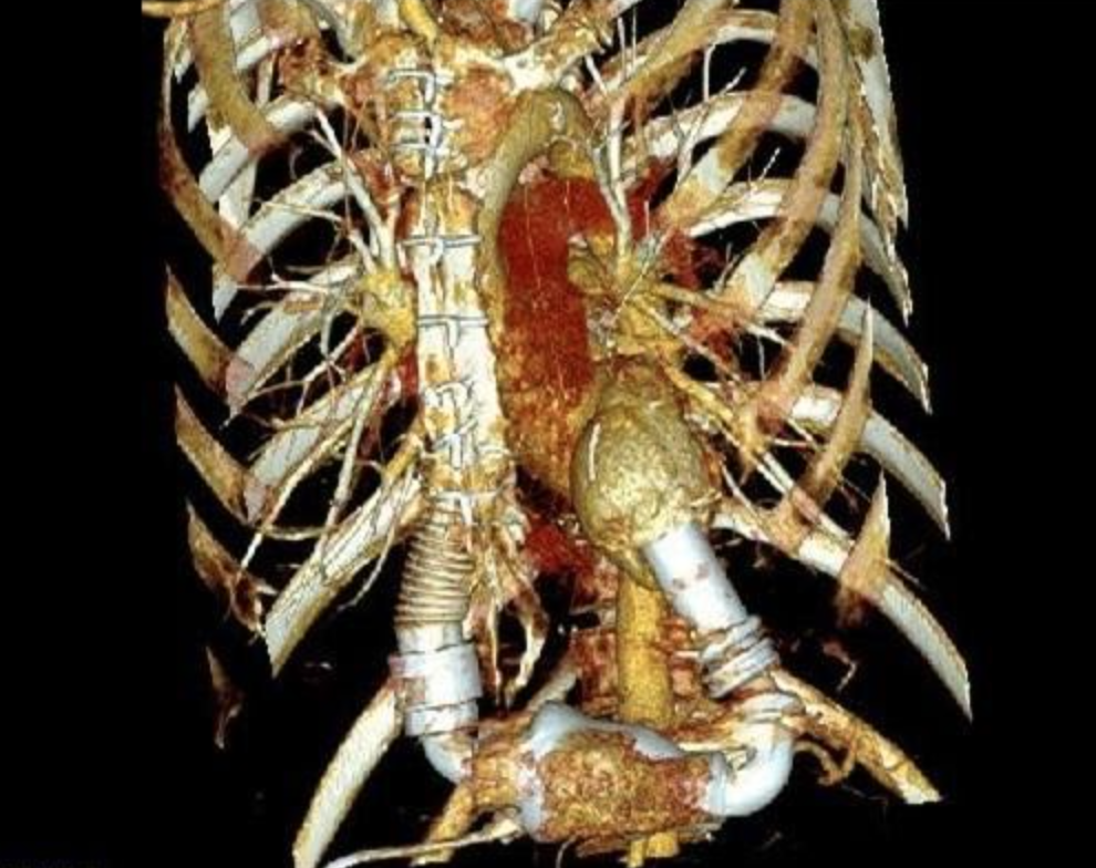 A Complex Heart Team's Approach to a Patient With Giant Cell Myocarditis
