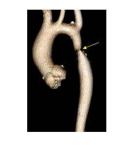 Patient with Coarctation of Aorta