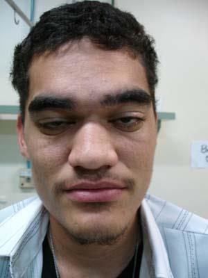 Characteristic facie of Fabry disease (prominent earlobes, thick eyebrows, depressed forehead, pronounced nasal angle, large nose, prominent supraorbital bridge, and long nasal base)